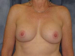 Breast Implant Exchange Patient 3