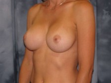 Scottsdale Arizona Breast Augmentation 1
