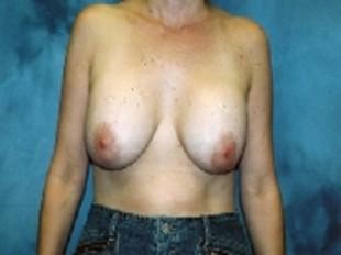 Breast Implant Exchange Patient 6