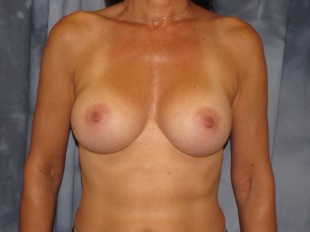 Breast Augmentation Patient 5