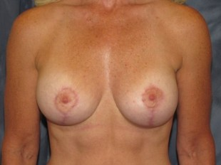 Breast Augmentation with Lift Patient 13