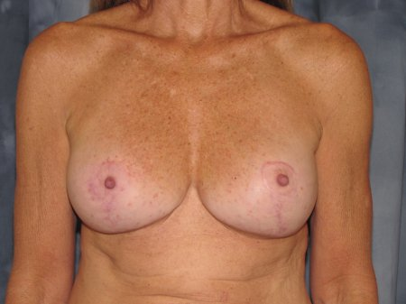 Breast Augmentation with Lift Patient 5