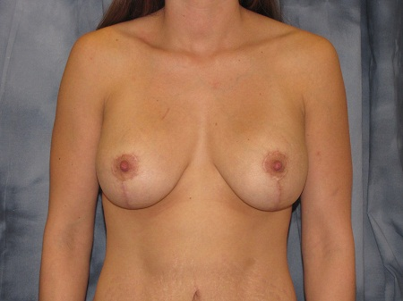 Breast Augmentation with Lift Patient 4