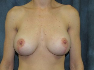 Breast Augmentation with Lift Patient 9