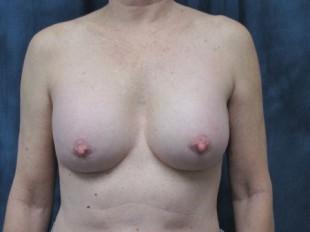 Breast Implant Exchange Patient 4