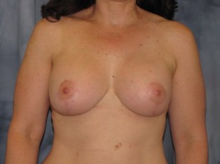 Breast Augmentation with Lift Patient 2