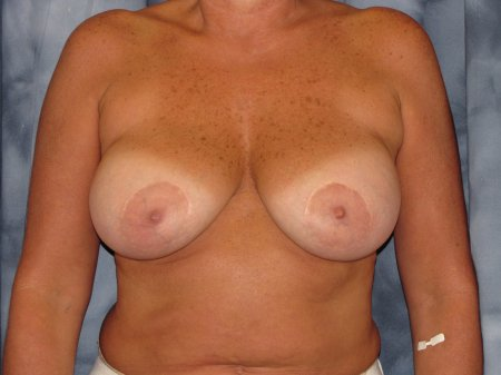 Breast Augmentation with Lift Patient 8