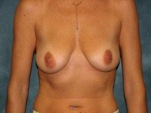 Breast Augmentation with Lift Patient 1