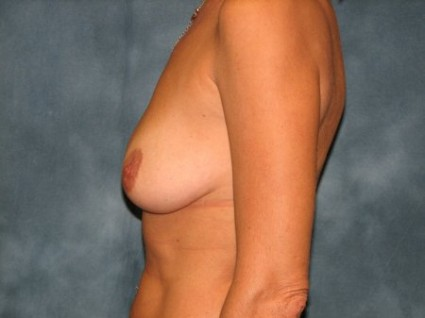 Mesa Arizona Breast Augmentation with Lift 1