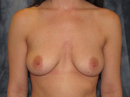 Breast Augmentation with Lift Patient 3