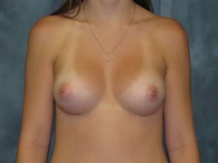 Breast Augmentation Patient 3