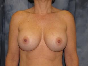 Breast Implant Exchange Patient 1
