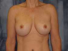 Scottsdale Arizona Breast Implant Exchange 1