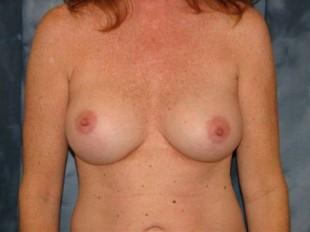 Breast Implant Exchange Patient 5