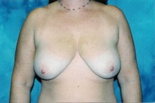 Scottsdale Arizona Breast Lift 1