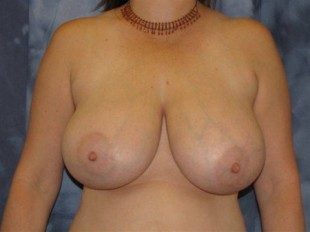 Breast Reduction Patient 3