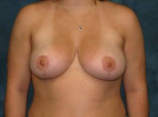 Scottsdale Arizona Breast Reduction 1