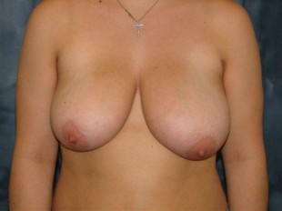 Breast Reduction Patient 1