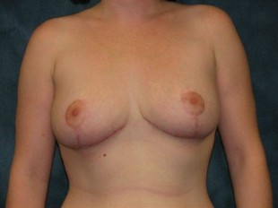 Breast Reduction Patient 8