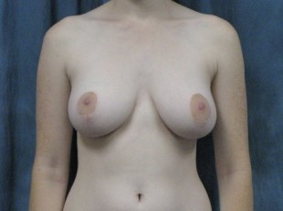 Breast Reduction Patient 6