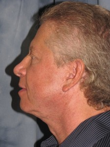 Scottsdale Arizona Male Facelift 1