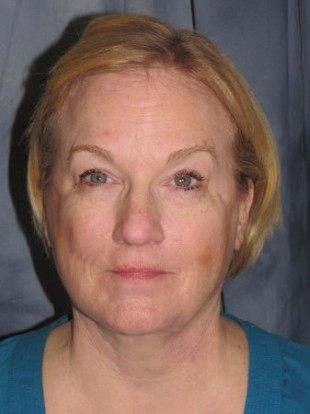 Facelift Patient 6