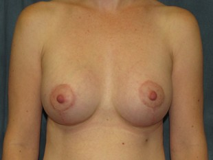 Breast Augmentation with Lift Patient 6