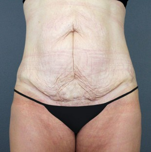 Tummy Tuck Patient 15