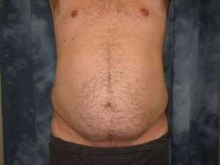 Male Patient 2 – Liposuction