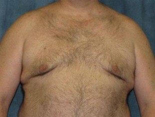 Liposuction Patient 10