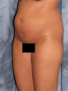 Mesa, Arizona Liposuction 1