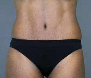 Tummy Tuck Patient 18