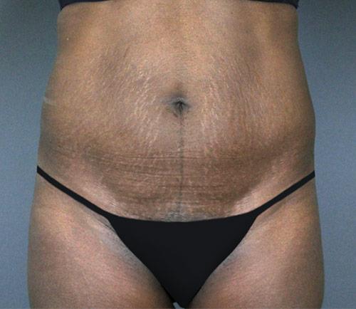 Tummy Tuck Patient 18