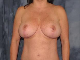 Breast Reduction Patient 4