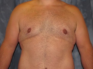 Male Patient 8 – Body Contouring