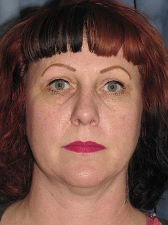 Mesa Arizona Eyelid Lift 1