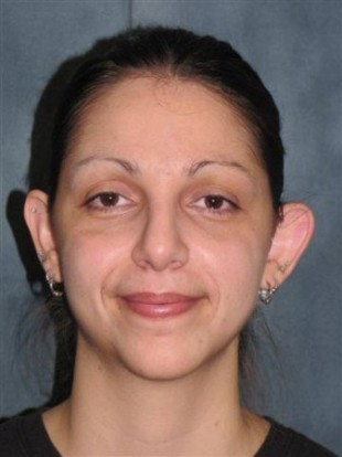 Rhinoplasty Patient 6