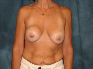Breast Implant Exchange Patient 2