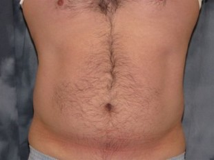 Male Patient 6 – liposuction of the torso