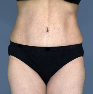 Tummy Tuck Patient 14