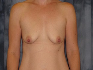 Breast Augmentation with Lift Patient 21