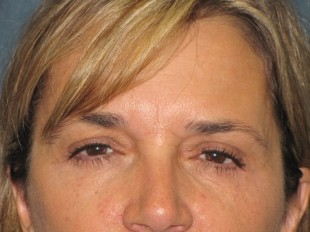 Botox and Juvederm Patient 2
