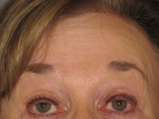 Botox and Juvederm Patient 3