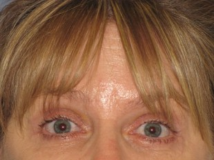 Botox and Juvederm Patient 1