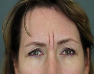 Botox Patient 5
