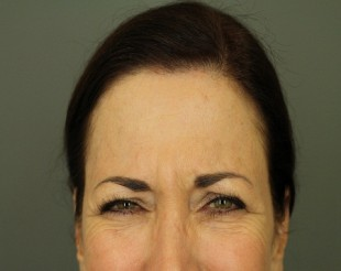 Botox and Juvederm Patient 6