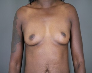 Breast Augmentation Patient 28