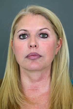 Patient Spotlight: Facelift Before & After