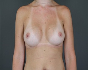 Breast Augmentation Patient 29