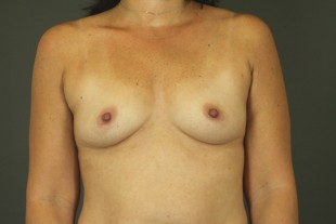 Breast Augmentation Patient 31